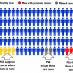 """Should We Stop Calling It Prostate """"Cancer""""?"""