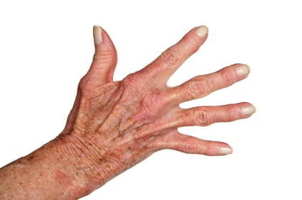 Today Show – Osteoarthritis