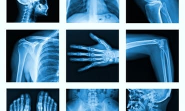 Top 5 Factors Contributing To Bone Loss