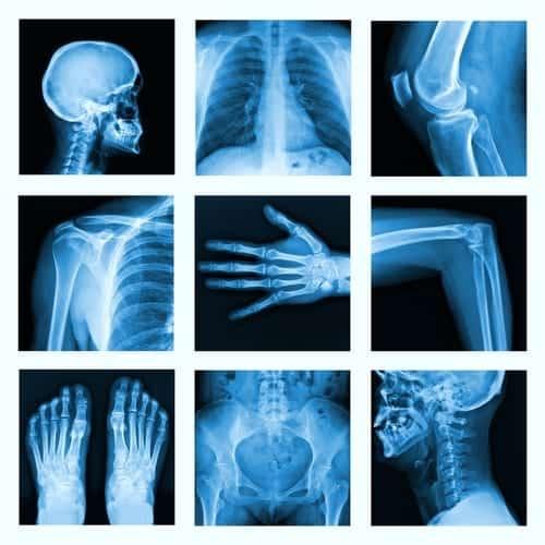 Top 5 Factors Contributing To Bone Loss