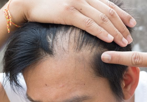 10 Powerful Tips To Regrow Your Hair & Restore Balance