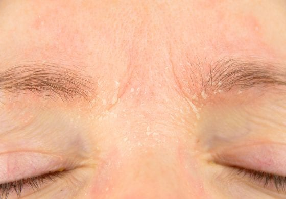 Tips And Treatments For Dermatitis On The Face